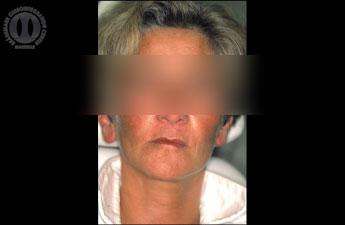 1988 - Patiente de 46 ans totalement édentée. On peut noter une déformation du visage au niveau de l'étage inférieur consécutive à la perte des dents et de leur support osseux.