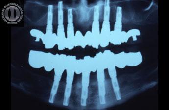 1988 - Radiographie post opératoire 5 implants à la mandibule et 6 au maxillaire ont permis de traiter cette patiente et de lui poser des prothèses fixes ostéoancrées