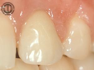 Résultat à long terme: 12 ans, noter la parfaite intégration de la dent dans les tissus mous environnants