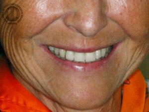 Ligne du sourire